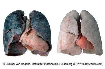 Mauvais poumons de fumer des images